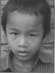 Sonam ist von seiner alkoholkranken Mutter so heftig verprügelt worden, dass er offene Wunden hatte. Jetzt lebt er im Kinderhaus bei Kathmandu
